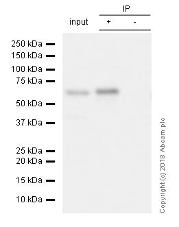 免疫沉淀-抗S6K1抗体[E33](AB32529)