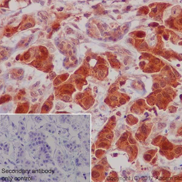 免疫组化(福尔马林/PFA固定石蜡切片)抗S6K1抗体[E33](AB32529)
