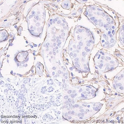 Immunohistochemistry (Formalin/PFA-fixed paraffin-embedded sections) - Anti-PDGFR beta antibody [Y92] - C-terminal (ab32570)