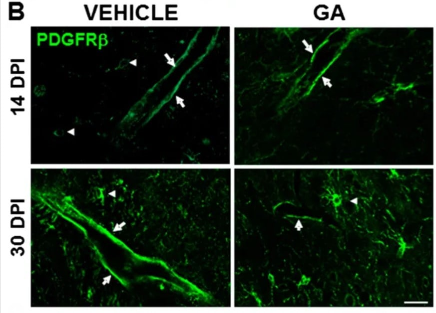 免疫组织化学-游离漂浮抗PDGFRβ抗体[Y92] -C-末端(AB32570)