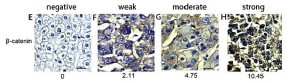 免疫组织化学(福尔马林/PFA固定石蜡切片)-抗β-连环蛋白抗体[E247](ab32572)