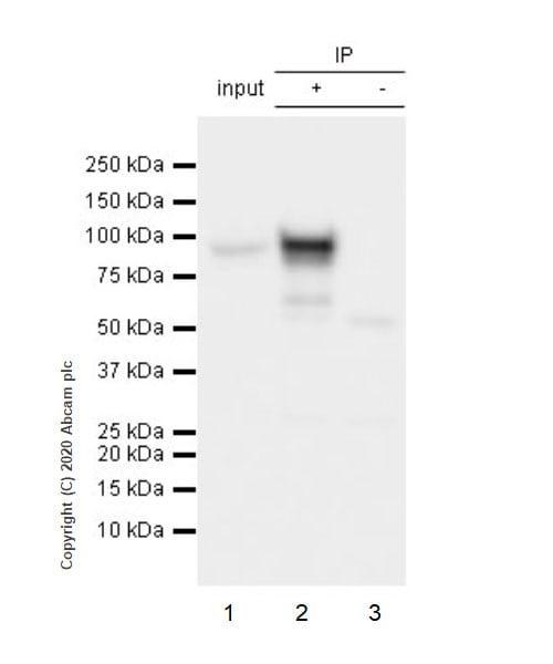 免疫沉淀-抗β-连环蛋白抗体[E247]-芯片级(ab32572)