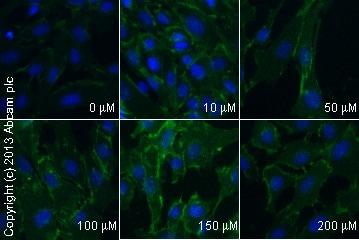 免疫细胞化学/免疫荧光-抗β连环蛋白抗体[E247](ab32572)