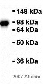 Western blot - Anti-beta Catenin antibody [E247] (ab32572)