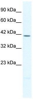 Western blot - Anti-PITX2 antibody (ab32832)