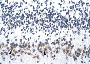 Immunohistochemistry (Formalin/PFA-fixed paraffin-embedded sections) - Anti-ZNF266 antibody (ab33005)