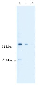 Western blot - Anti-Tristetraprolin antibody (ab33058)