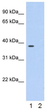 Western blot - Anti-Annexin A1 antibody (ab33061)