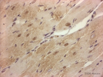 Immunohistochemistry (Formalin/PFA-fixed paraffin-embedded sections) - Anti-VE Cadherin antibody - Intercellular Junction Marker (ab33168)