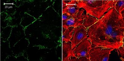 Immunocytochemistry/ Immunofluorescence - Anti-VE Cadherin antibody - Intercellular Junction Marker (ab33168)