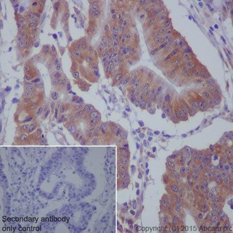 免疫组化(福尔马林/PFA固定石蜡切片)抗MEKK2抗体[EP626Y](AB33 918)