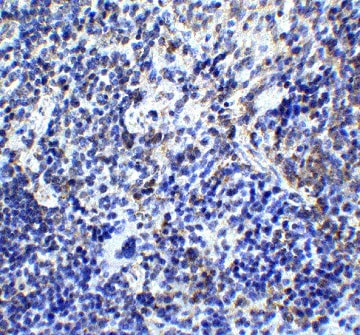 Immunohistochemistry (Formalin/PFA-fixed paraffin-embedded sections) - Anti-TLR9 antibody (ab37154)
