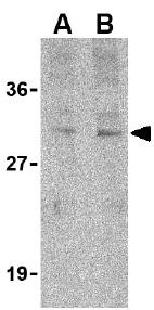 Western blot - Tollip antibody (ab37155)