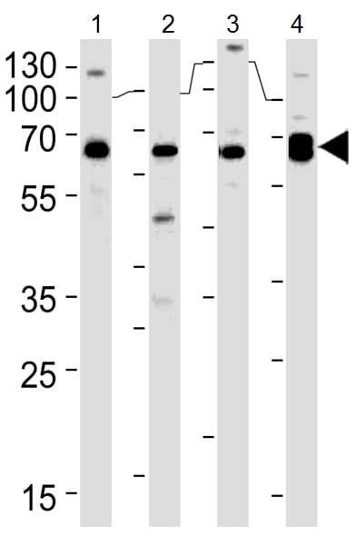 Western blot - Anti-PACSIN2 antibody (ab37615)