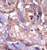Immunohistochemistry (Formalin/PFA-fixed paraffin-embedded sections) - Anti-TXK antibody - Aminoterminal end (ab37818)