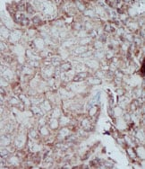 Immunohistochemistry (Formalin/PFA-fixed paraffin-embedded sections) - Anti-PKM2 antibody (ab38237)