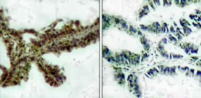 Immunohistochemistry (Formalin/PFA-fixed paraffin-embedded sections) - Anti-pan-AKT (phospho T308) antibody (ab38449)