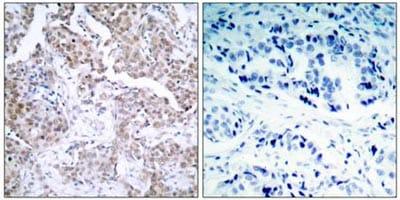 Immunohistochemistry (Paraffin-embedded sections) - p53 (phospho S15) antibody (ab38497)