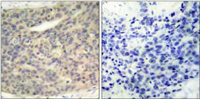 Immunohistochemistry (Formalin/PFA-fixed paraffin-embedded sections) - Anti-LIM Kinase 1 (phospho T508) antibody (ab38508)