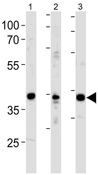 Western blot - Anti-NeuroD1 antibody (ab38552)
