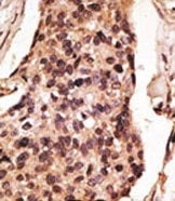 Immunohistochemistry (Formalin/PFA-fixed paraffin-embedded sections) - Anti-SIGLEC8 antibody (ab38578)