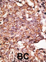 Immunohistochemistry (Formalin/PFA-fixed paraffin-embedded sections) - Anti-SIGLEC6 antibody (ab38581)