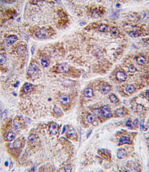 Immunohistochemistry (Formalin/PFA-fixed paraffin-embedded sections) - Anti-FDPS antibody (ab38854)