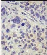 Immunohistochemistry (Formalin/PFA-fixed paraffin-embedded sections) - Anti-UBPY/USP8 antibody (ab38865)