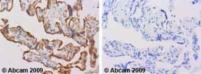 Immunohistochemistry (Formalin/PFA-fixed paraffin-embedded sections) - Anti-MMP7 antibody (ab38996)