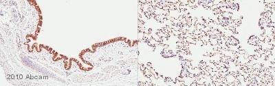 Immunohistochemistry (Formalin/PFA-fixed paraffin-embedded sections) - Anti-JAK2 antibody (ab39636)