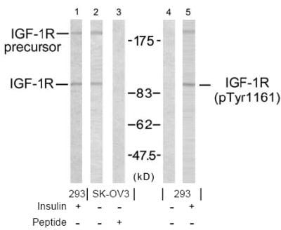 Western blot - IGF1 Receptor antibody (ab39675)