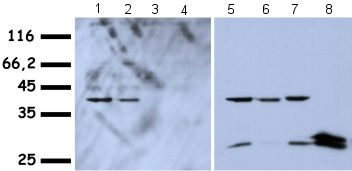 Western blot - Anti-HMGA1a / HMGA1b antibody - ChIP Grade (ab4078)