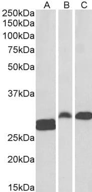 Western blot - Anti-PHAPI2 / APRIL antibody (ab4224)