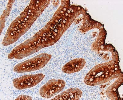 Immunohistochemistry (Formalin/PFA-fixed paraffin-embedded sections) - Anti-CEACAM5 antibody [26/3/13] - BSA and Azide free (ab4451)