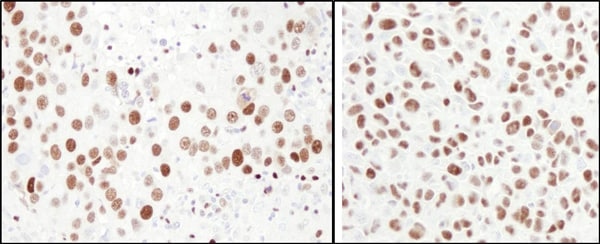 Immunohistochemistry (Formalin/PFA-fixed paraffin-embedded sections) - Anti-MCM6 antibody (ab4458)