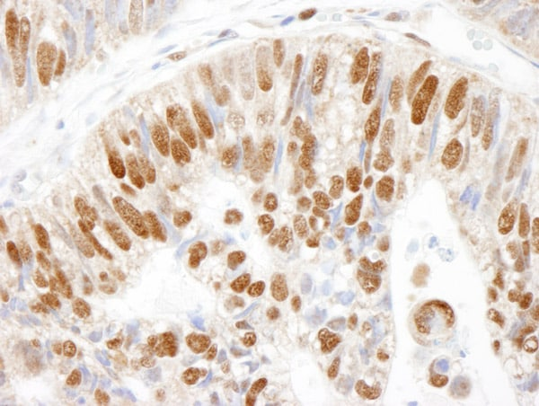 Immunohistochemistry (Formalin/PFA-fixed paraffin-embedded sections) - Anti-MCM3 antibody - ChIP Grade (ab4460)