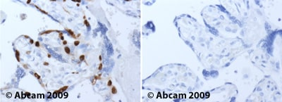 Immunohistochemistry (Formalin/PFA-fixed paraffin-embedded sections) - Anti-MCM2 antibody (ab4461)