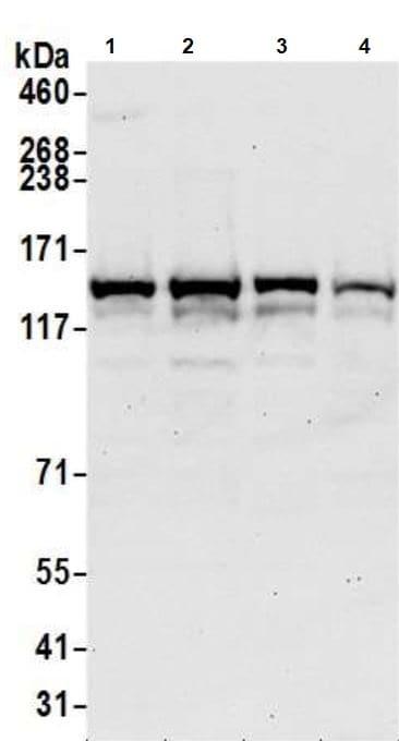 Western blot - Anti-SA2 antibody (ab4464)