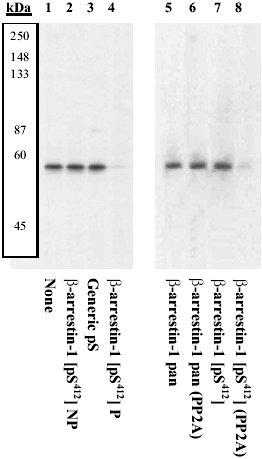 Western blot - Anti-beta Arrestin 1 (phospho S412) antibody (ab4472)