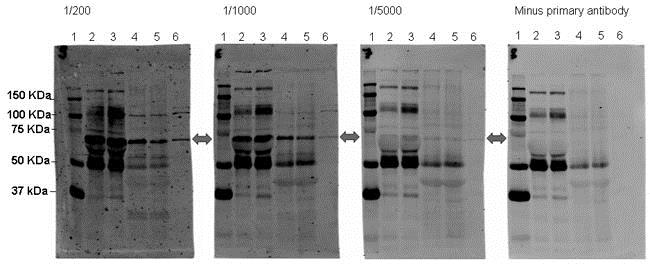 Western blot - Anti-SORBS1 antibody (ab4551)