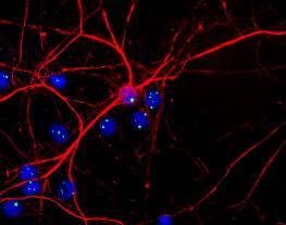 Immunocytochemistry/ Immunofluorescence - Anti-Fibrillarin antibody [38F3] - Nucleolar Marker (ab4566)