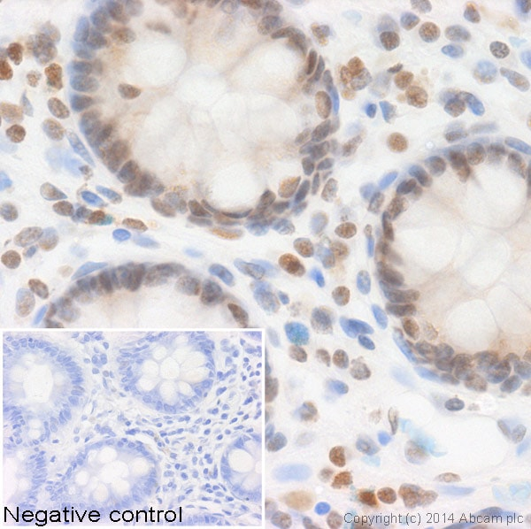 Immunohistochemistry (Formalin/PFA-fixed paraffin-embedded sections) - Anti-Histone H4 (acetyl K91) antibody - ChIP Grade (ab4627)