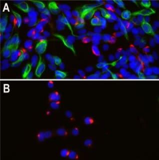 Immunocytochemistry/ Immunofluorescence - Anti-Peripherin antibody [8G2] (ab4653)