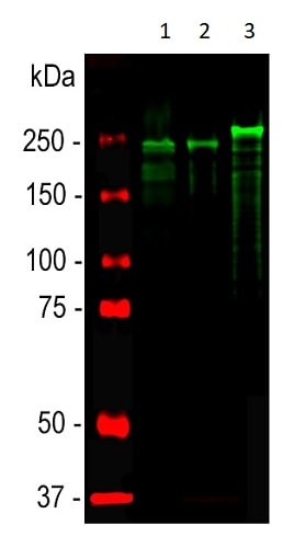 Western blot - Anti-Neurofilament heavy polypeptide antibody (ab4680)