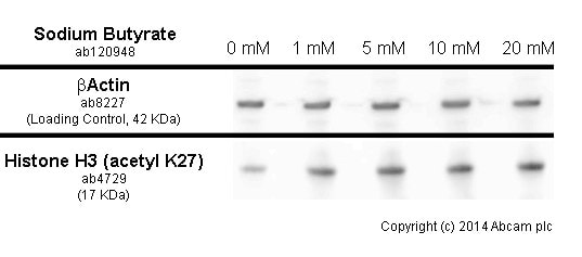 Western blot - Anti-Histone H3 (acetyl K27) antibody - ChIP Grade (ab4729)