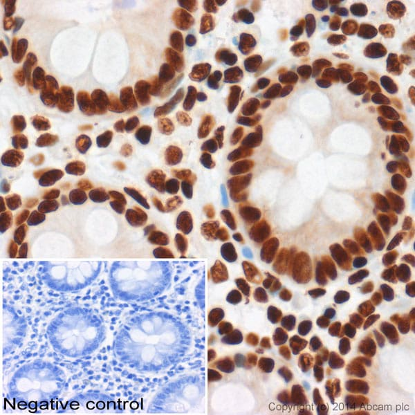 Immunohistochemistry (Formalin/PFA-fixed paraffin-embedded sections) - Anti-Histone H3 (acetyl K27) antibody - ChIP Grade (ab4729)