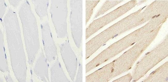 Immunohistochemistry (Formalin/PFA-fixed paraffin-embedded sections) - Anti-IRS1 (phospho S616) antibody (ab4776)