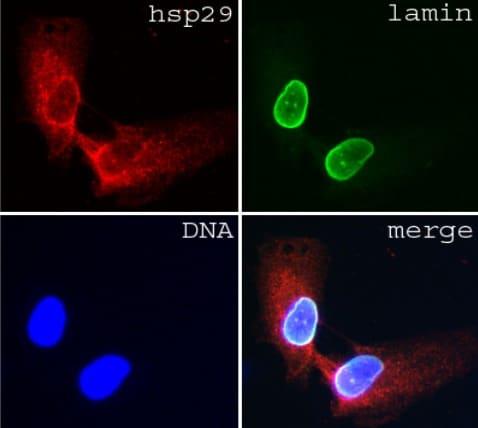 Immunocytochemistry/ Immunofluorescence - Anti-Lamin A + C antibody [JoL3] (ab4789)