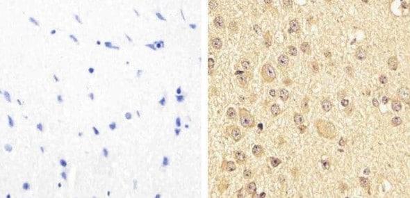 Immunohistochemistry (Formalin/PFA-fixed paraffin-embedded sections) - Anti-PYK2 (phospho Y579 + Y580) antibody (ab4807)