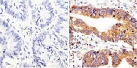 Immunohistochemistry (Formalin/PFA-fixed paraffin-embedded sections) - Anti-Src (phospho Y418) antibody (ab4816)